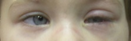 Глаза через три дня после обычной хирургии косоглазия